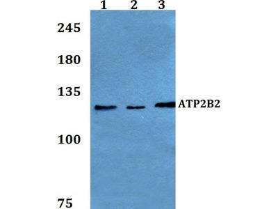 Rabbit Anti-ATP2B2 Antibody