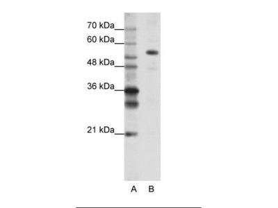 Rabbit Anti-FLJ12529 Antibody