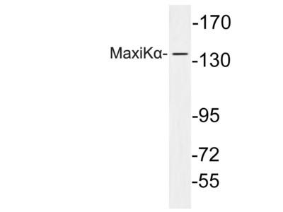 Rabbit Anti-MaxiK alpha Antibody