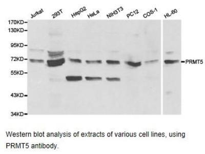 Rabbit Anti-PRMT5 Antibody