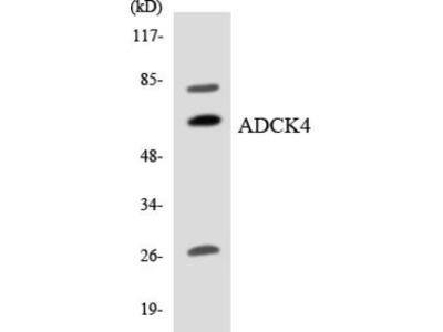 Pab Rb x human ADCK4 (COQ8) antibody