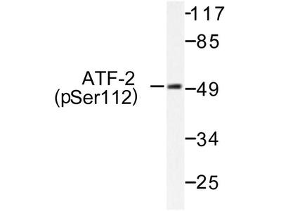 Rabbit Anti-ATF2, phosphorylated Antibody
