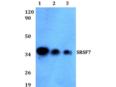 Rabbit Anti-SRSF7 Antibody