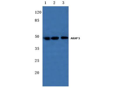 Rabbit Anti-AKAP 5 Antibody