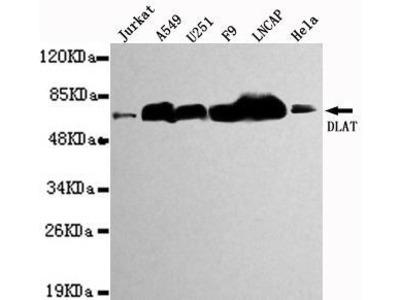 Mouse Anti-DLAT Antibody