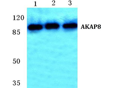 Rabbit Anti-AKAP8 Antibody
