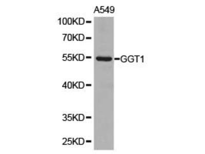 Rabbit Anti-GGT1 Antibody