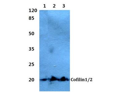 Rabbit Anti-Cofilin 1/2 Antibody