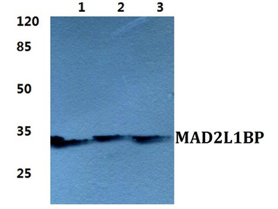 Rabbit Anti-MAD2L1BP Antibody
