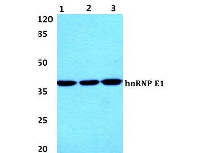 Rabbit Anti-hnRNP E1 Antibody