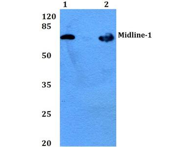 Rabbit Anti-Midline-1 Antibody