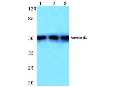 Rabbit Anti-Arrestin beta Antibody