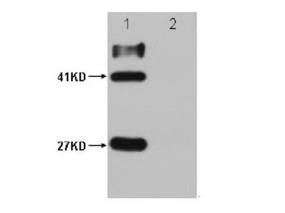 Mouse Anti-HSV-Tag Epitope Tag Antibody