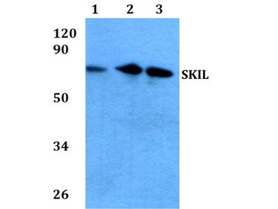 Rabbit Anti-SnoN Antibody