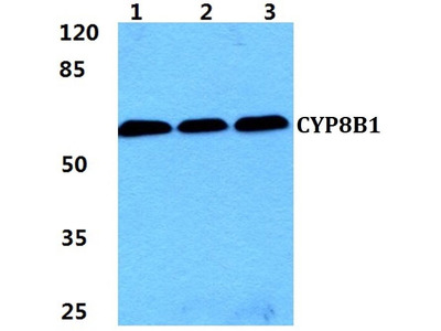 Rabbit Anti-CYP8B1 Antibody
