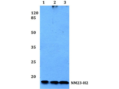 Rabbit Anti-NM23-H2 Antibody