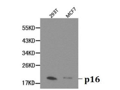 Rabbit Anti-p16 INK4a Antibody