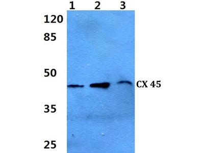 Rabbit Anti-Connexin 45 Antibody