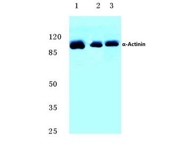 Rabbit Anti-Actinin, alpha1/2/3/4 Antibody