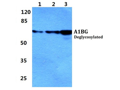 Rabbit Anti-A1BG Antibody