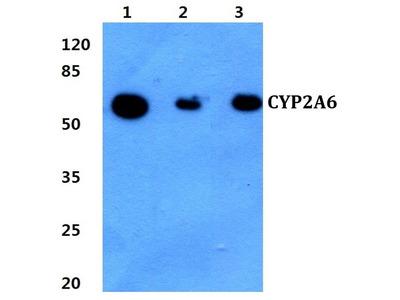 Rabbit Anti-CYP2A6 Antibody