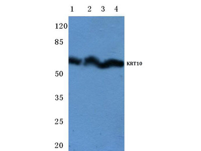Rabbit Anti-Cytokeratin 10 Antibody