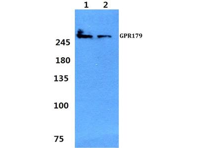 Rabbit Anti-GPR179 Antibody