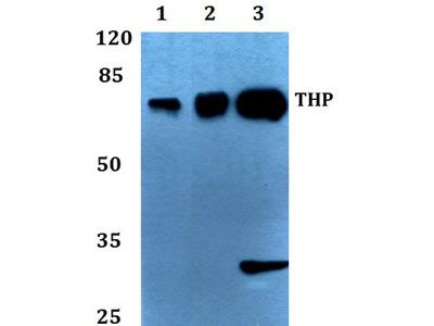 Rabbit Anti-THP Antibody