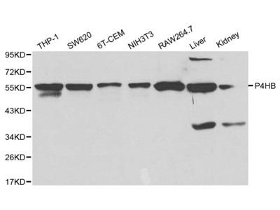 Rabbit Anti-P4HB Antibody