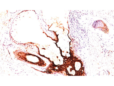 Mouse Anti-Cytokeratin 17 Antibody