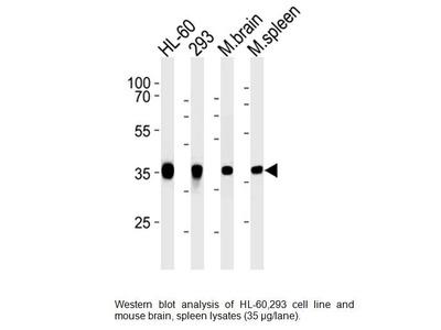 Mouse Anti-Aldolase C, CT Antibody