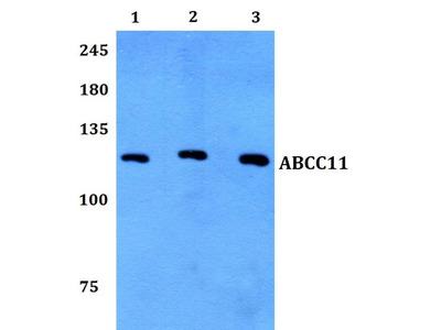 Rabbit Anti-ABCC11 Antibody