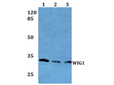Rabbit Anti-WIG1 Antibody