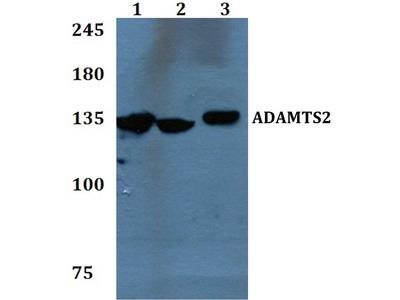 Rabbit Anti-ADAMTS2 Antibody