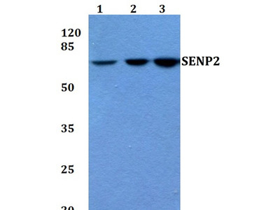 Rabbit Anti-SENP2 Antibody