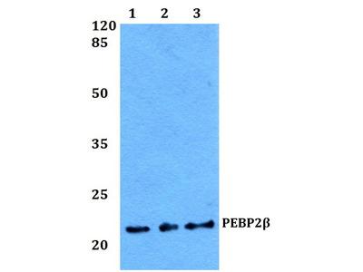 Rabbit Anti-PEBP2beta Antibody
