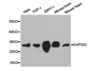 Rabbit Anti-CAPZA2 Antibody