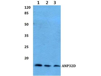 Rabbit Anti-ANP32D Antibody