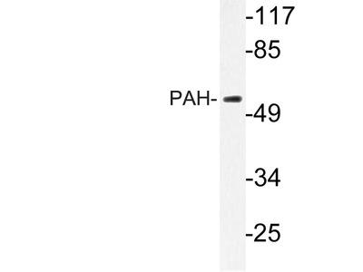 Rabbit Anti-PAH Antibody