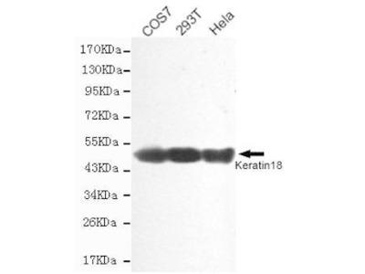 Mouse Anti-Cytokeratin 18 Antibody