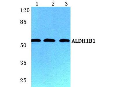 Rabbit Anti-ALDH1B1 Antibody