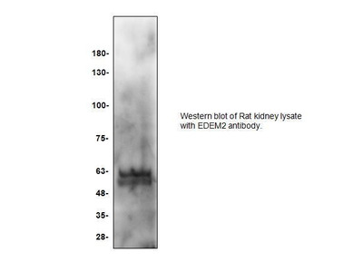 Rabbit Anti-EDEM2, CT Antibody
