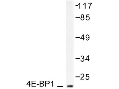 Rabbit Anti-4E-BP1 Antibody