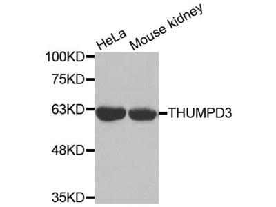 THUMPD3 Polyclonal Antibody