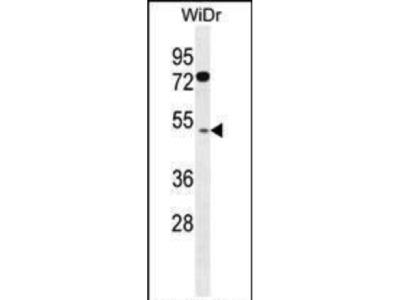 Rabbit Anti-RMD1 Antibody