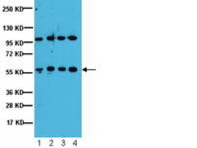 Rabbit Anti-PP2A-B' Antibody