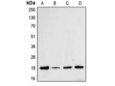 Anti-Cofilin (pS3) Antibody