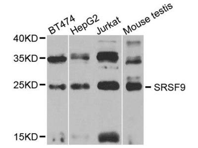 SRSF9 Polyclonal Antibody