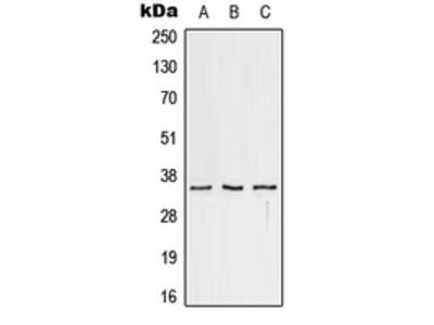 Anti-CD32c Antibody