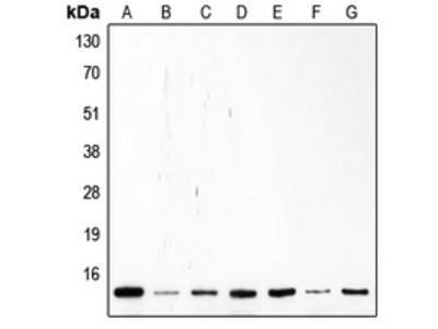 Anti-p14 ARF Antibody